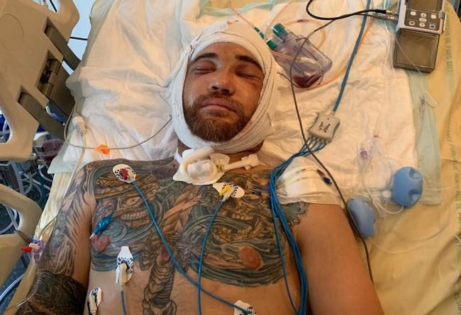 Weston Peick publie les photos de ses blessures